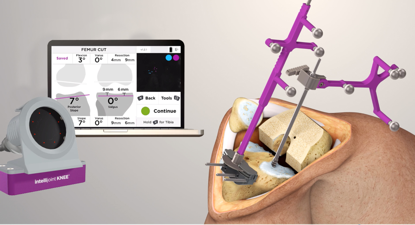 Intellijoint Surgical launches new smart navigation solution for total knee replacements - Intellijoint KNEE